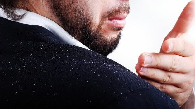 7 Best Home Remedies to Get Rid of Dandruff